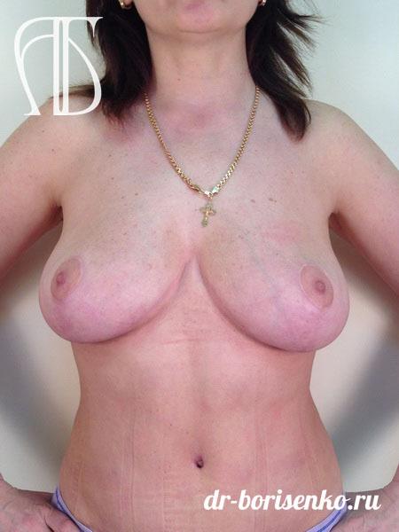 уменьшение груди после