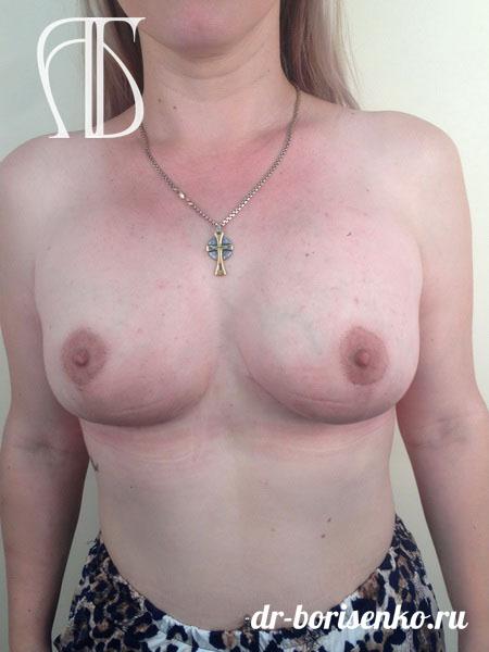 сделать уменьшение груди после