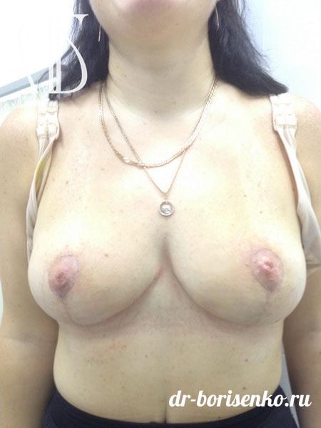 уменьшение груди клиники после
