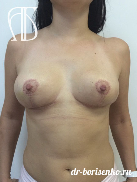 хирургическое уменьшение груди после