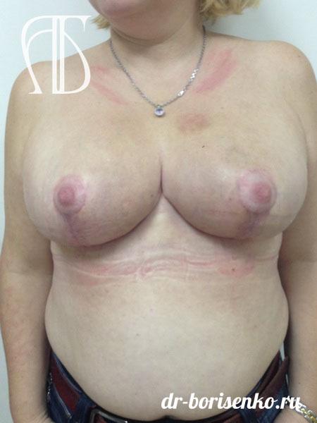 способы уменьшения груди после