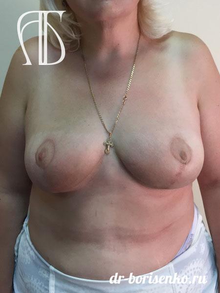 как делают операцию по уменьшению груди после