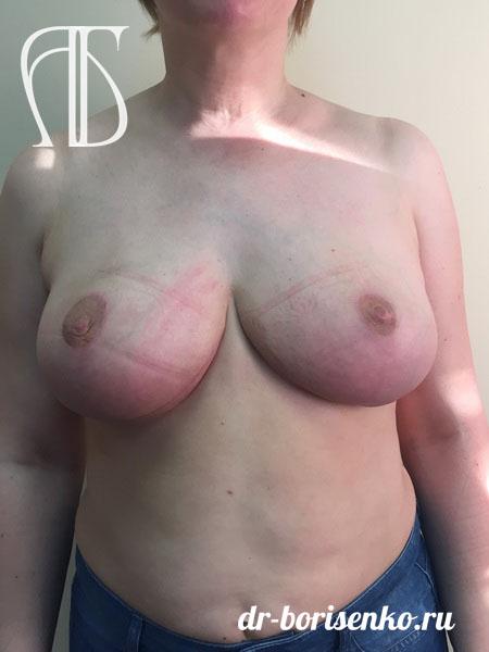 операция редукционная маммопластика после
