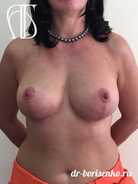 подтяжка груди без имплантов после