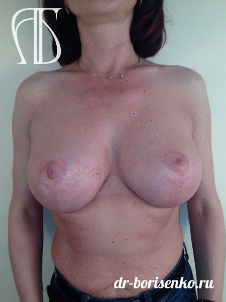 вертикальная подтяжка груди после