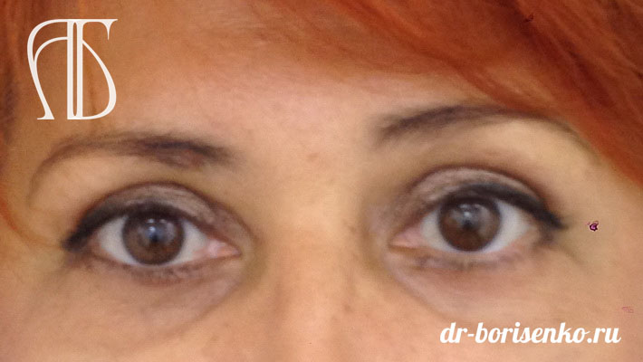 блефаропластика глаз после