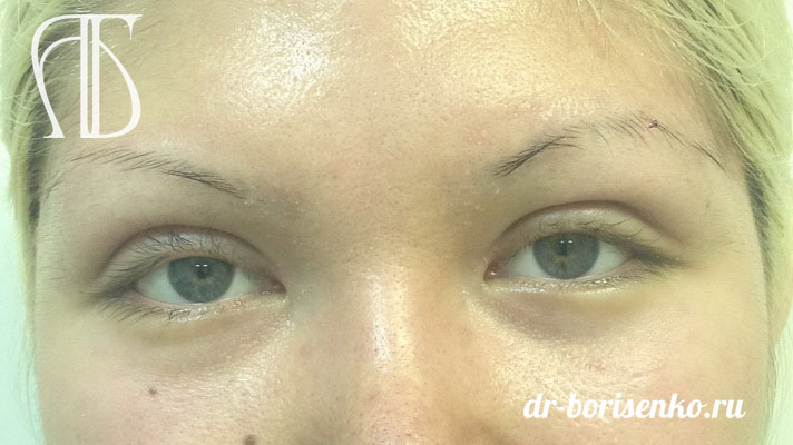 блефаропластика азиатских глаз после