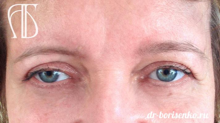 блефаропластика разрез глаз после