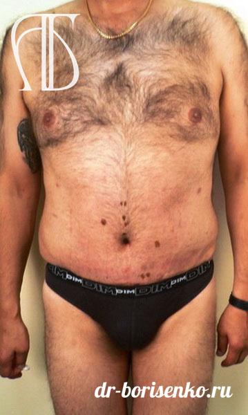 абдоминопластика для мужчин после