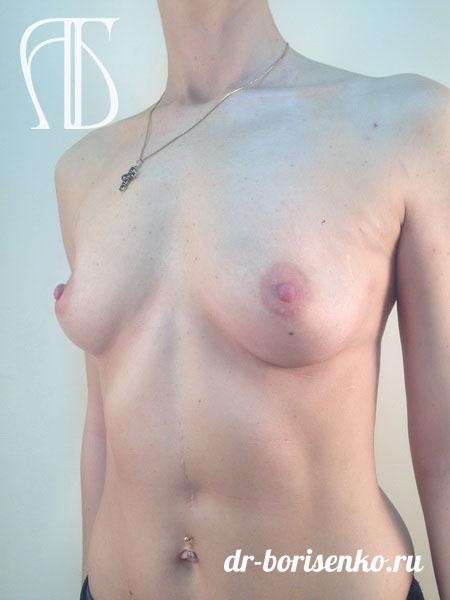 увеличение маленькая грудь до