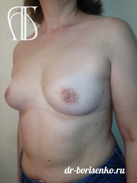 повторное увеличение груди до