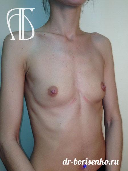 эффективные способы увеличения груди до