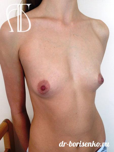 увеличение груди с 1 до 3 размера до