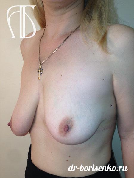 уменьшение и подтяжка груди до