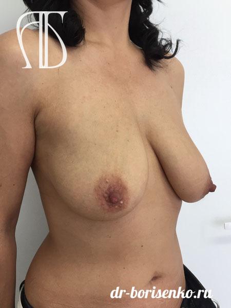 подтяжка кожи груди до