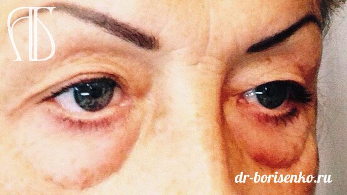 глаза после блефаропластики фото до