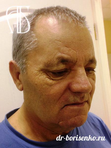 Круговая подтяжка лица операция до