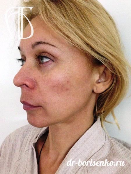 Пластика лица операции до