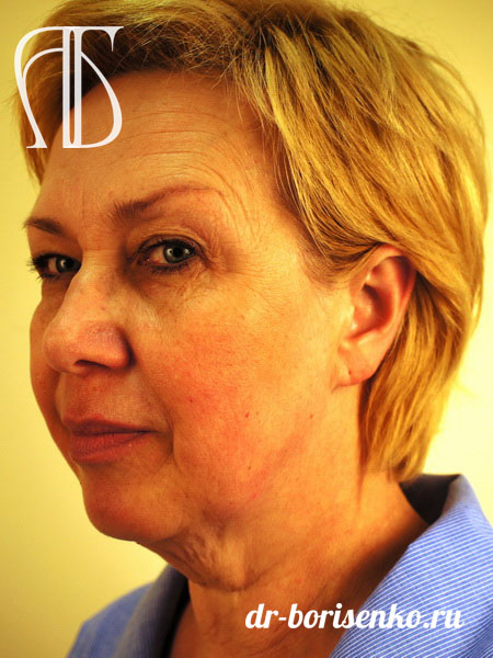Хирургическая пластика лица до