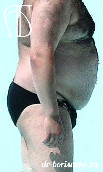 Мужская абдоминопластика до