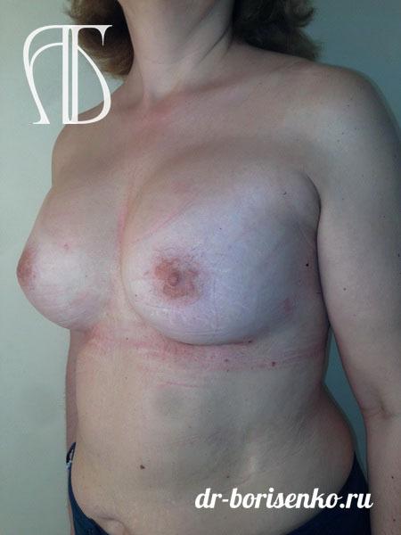 повторное увеличение груди после