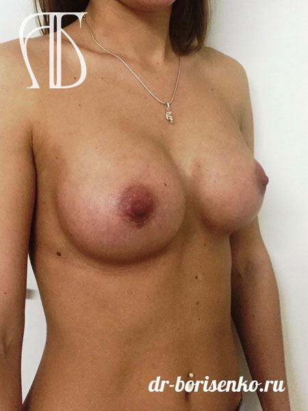 увеличение груди где сделать после