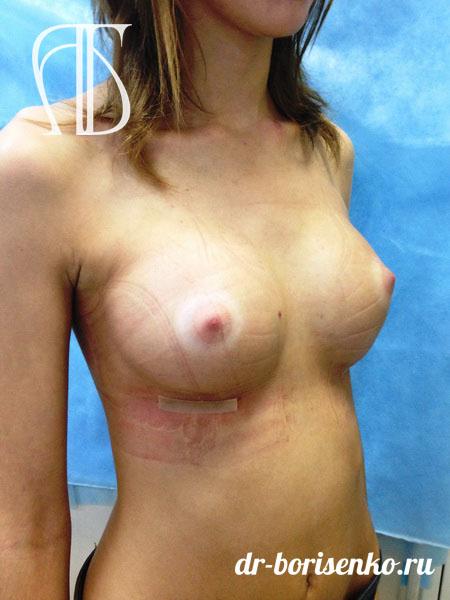 увеличение груди отзывы и фото после