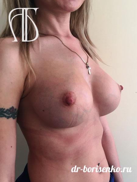 виды операций по увеличению груди после
