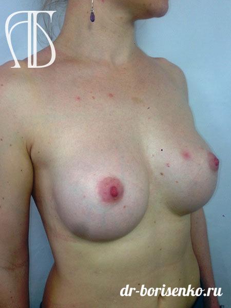 увеличение груди с 1 до 3 после