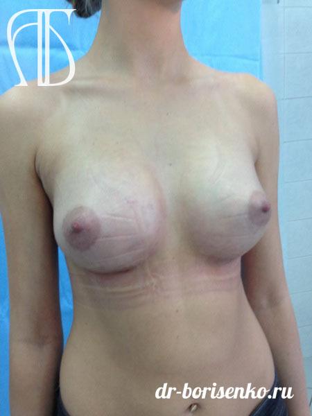 увеличение груди с 1 до 3 размера после