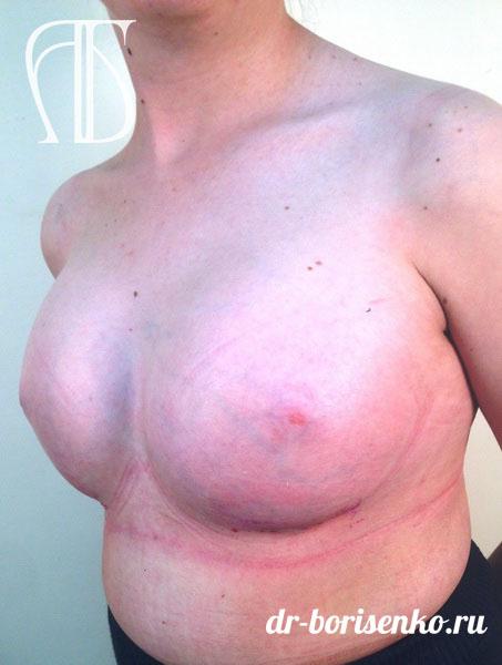 имплантация груди после