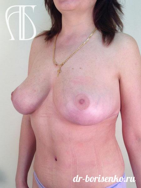 операция по уменьшению груди после