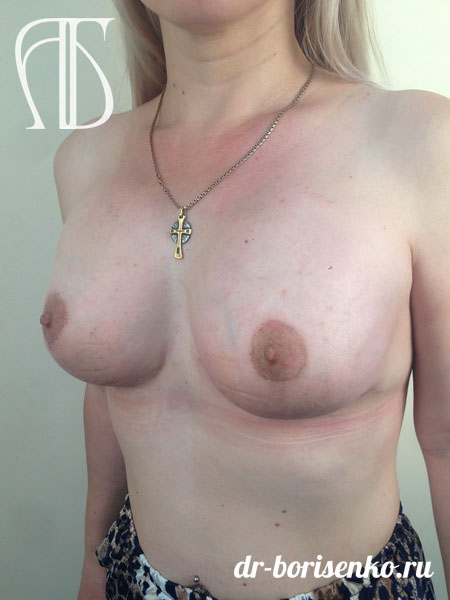 уменьшение и подтяжка груди после