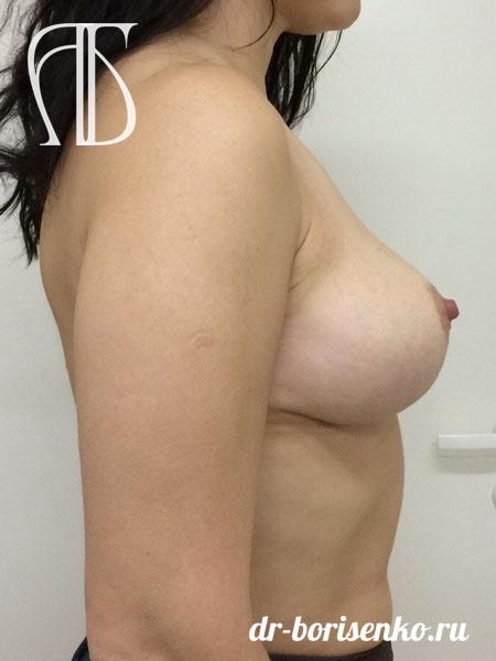 уменьшение ореолы груди после