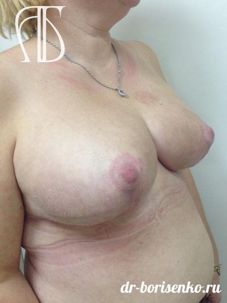 редукция груди после
