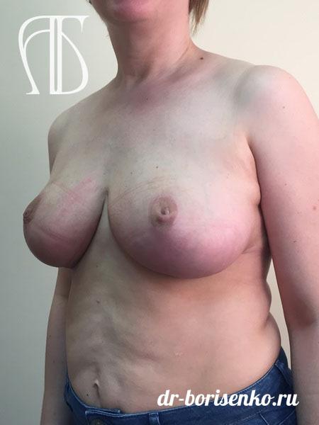 как уменьшить грудь после