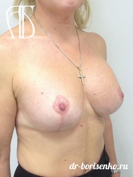 подтяжка груди фото после