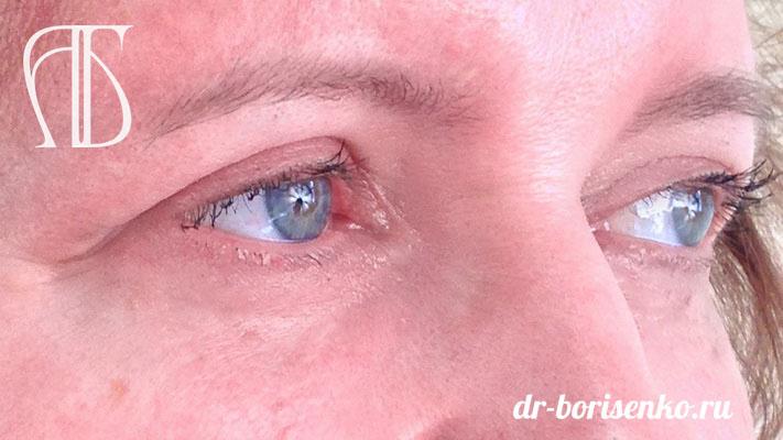блефаропластика сразу после операции до