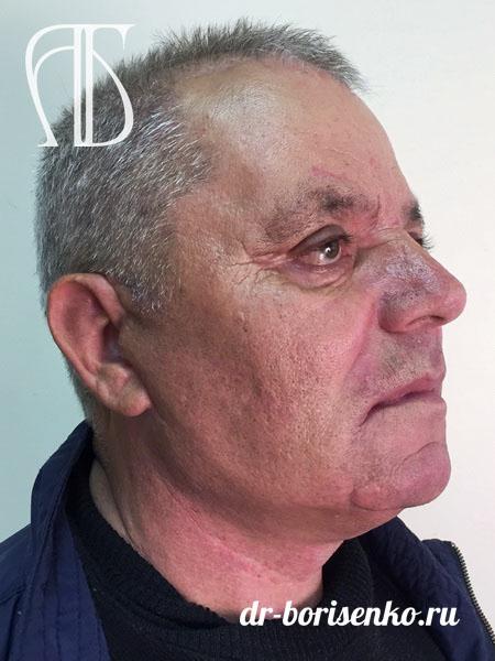 Круговая подтяжка лица операция после