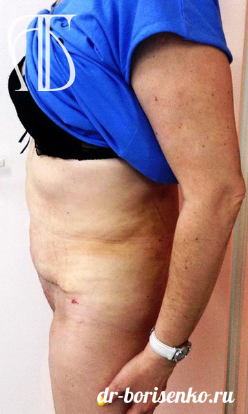 абдоминопластика после операции