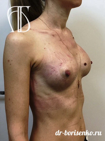 пластическое увеличение груди после