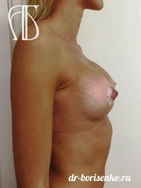 увеличение объема груди после