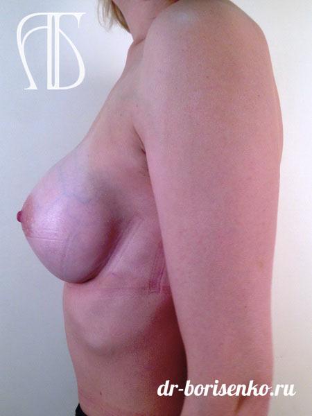 результаты увеличения груди после