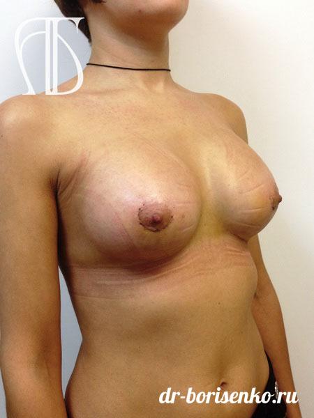 маммопластика увеличение груди после