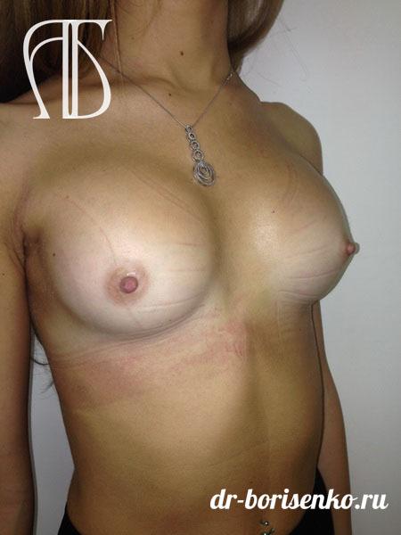 пластические хирурги по увеличение груди после