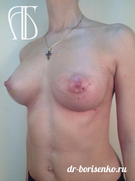 увеличение маленькая грудь после
