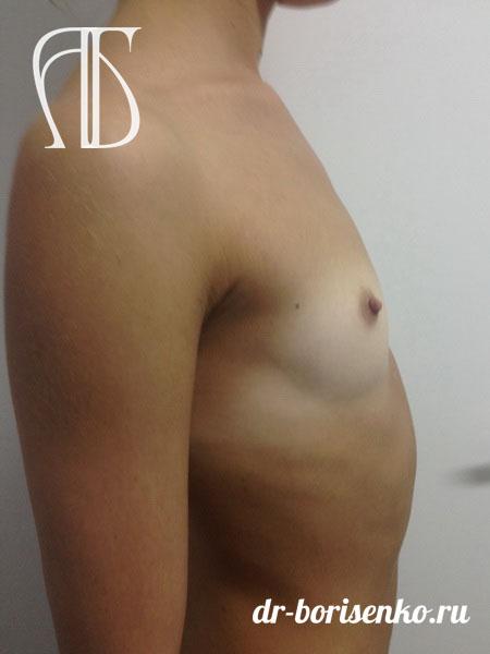 первая операция по увеличению груди до