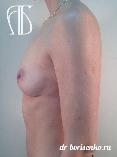 увеличение груди на 1 размер до