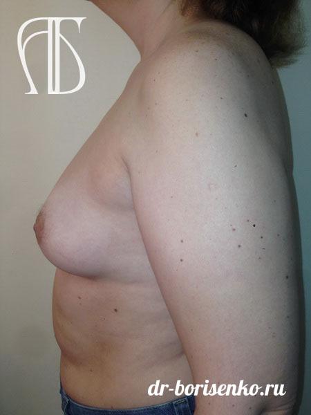 увеличение груди с помощью операции до
