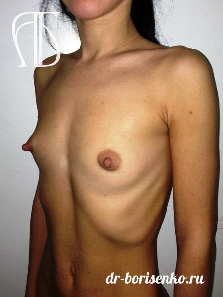 клиники пластической хирургии увеличение груди до